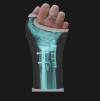 Xray Gets Printed Right onto Your Cast