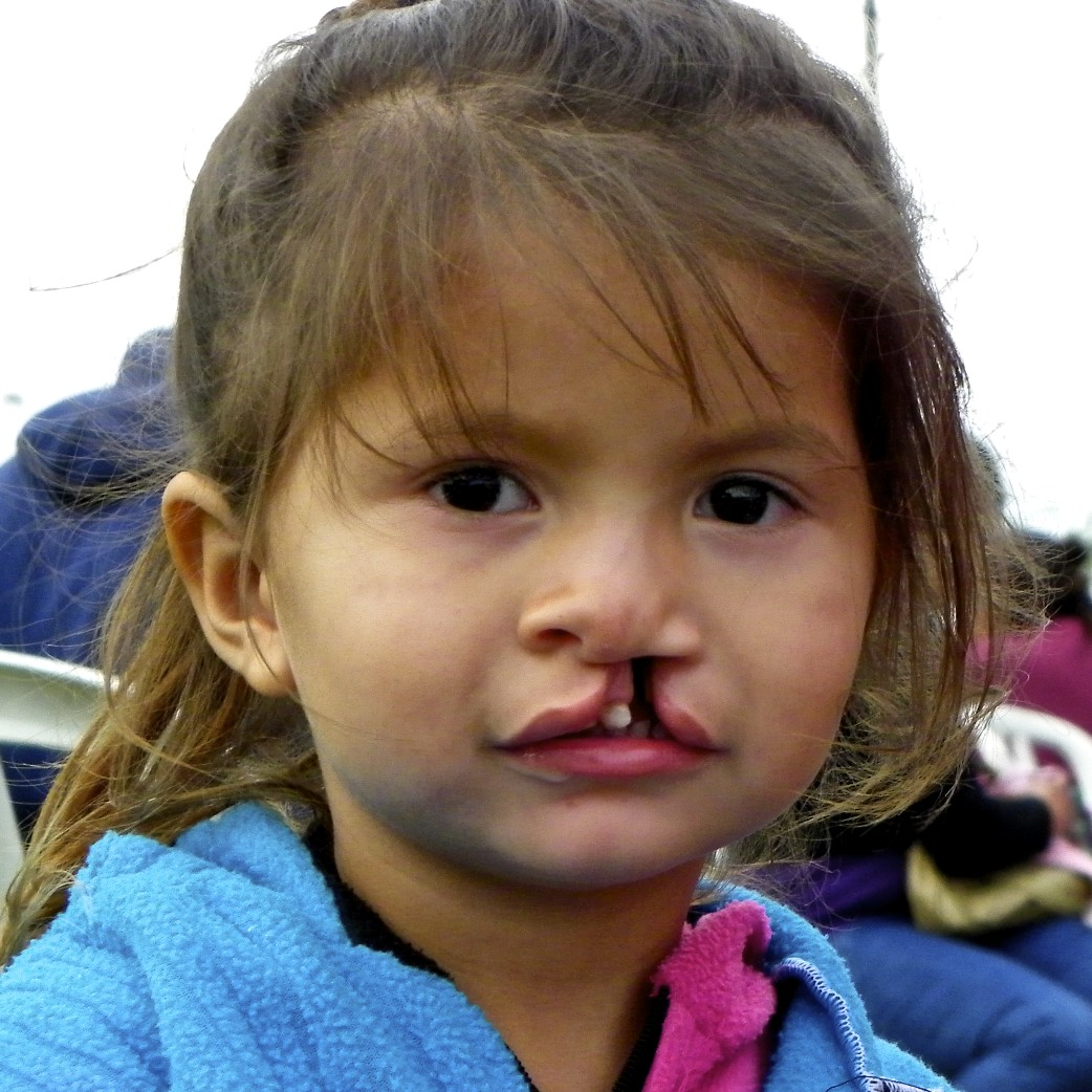 The Daily Smile Mission: Paraguay With Operation Smile, Part 1